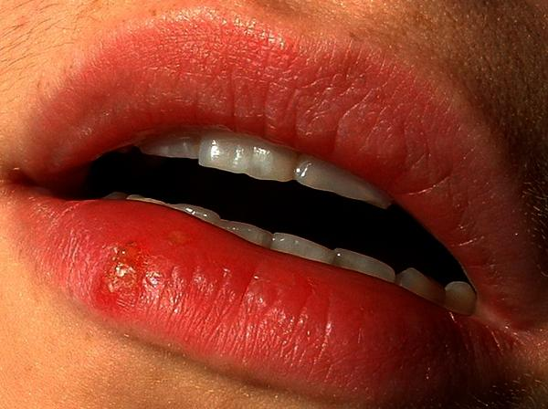 What causes cold sores on the lips not to go away?