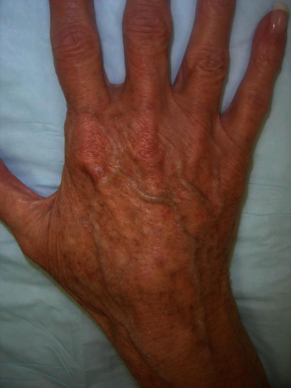 What causes repeated broken blood vessels in fingers?