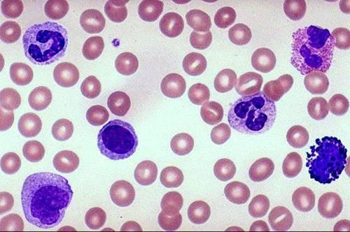 elevated monocytes and eosinophils - answers on healthtap, Skeleton