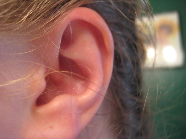 Are there effective natural treatments for puncture wound of the ear?