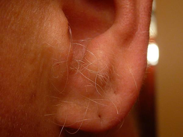 I've got puncture wound of the ear. Now what?