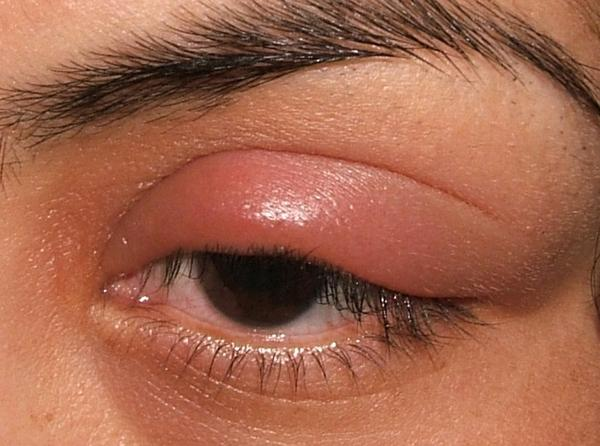 My eyelid is red, painful, and slightly swollen. It looks like it's drooping. Is this myasthenia gravis or just inflammation of the eyelid?