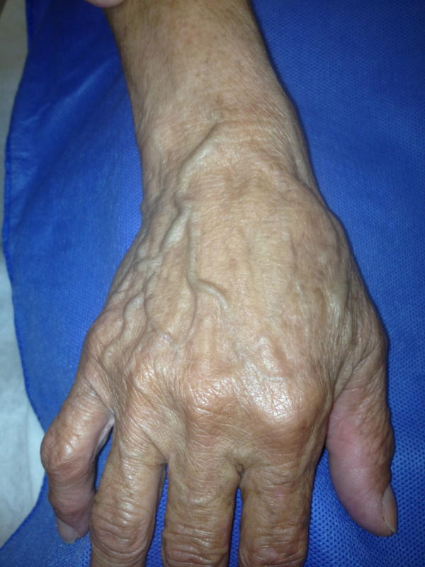 Is it serious if I have blue veins on the palms of my hands?