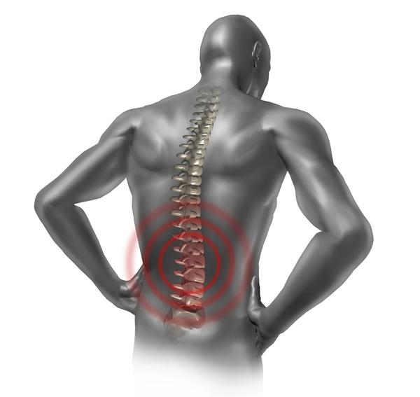 When I lower my chin to my chest while slightly leaning forward, lower back pain increases and radiated to hips. Nerves or muscles?