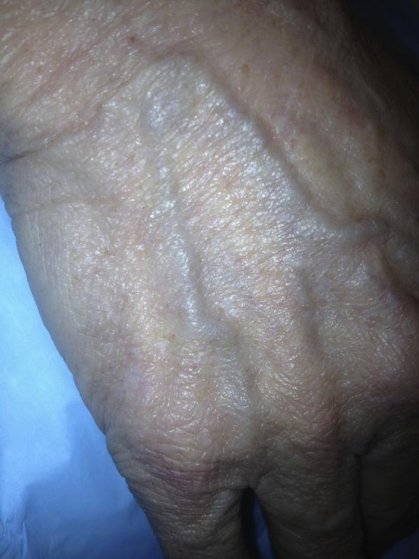 Bulging veins on top of hands cause?