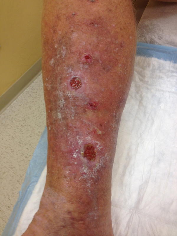 Are there any herbal help for pain with venous ulcer?