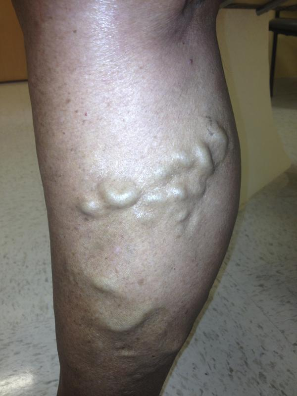 Any treatment for superficial thrombophlebitis?
