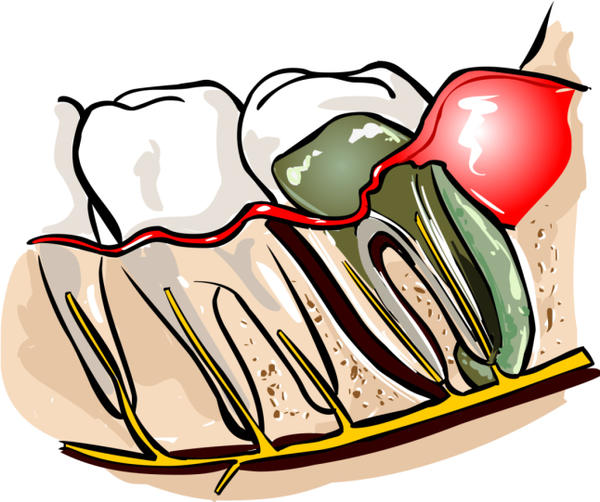 After starting antibiotics for an abscessed tooth how long before you see results?