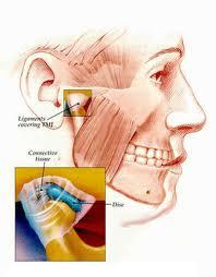 Can TMJ also cause stiff neck?Jaw line aches, ringing in ears, stiff neck, slight vertigo jaw stiff but can move it fine.Jaw click/cracks is their help