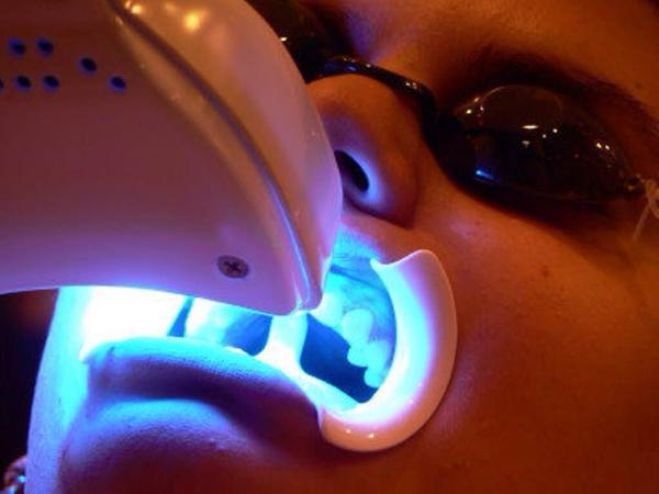 Is laser teeth whitening the most effective way to whiten your teeth?