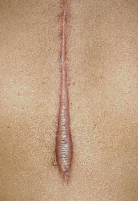 What is the best way to heal a very old keloid?