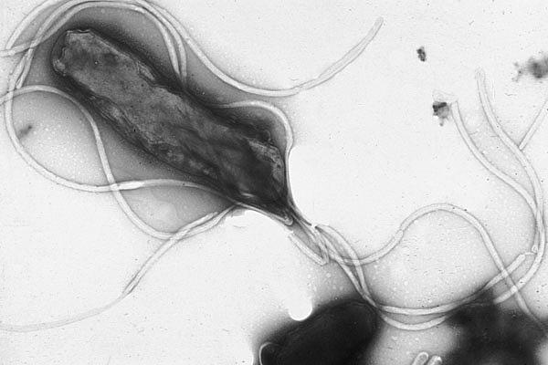 Saw a show on tv and they mentioned something called helicobacter pylori infections. What is that?