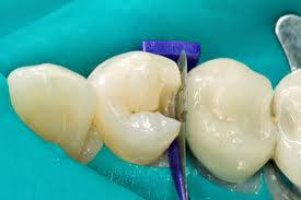 How does a dentist fill two cavities in a tooth when one is on the side?