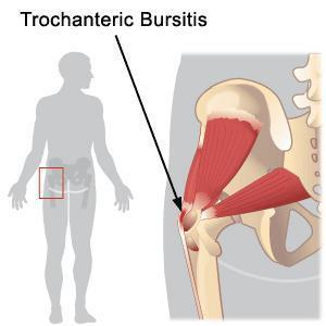 Chronic pain fr hip to thigh.Sometimes stiff n worsen by movement.Osteoarthritis?Glucosamine+chondroitin+msm help?