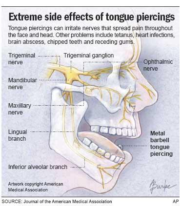 Wanted to know if I can eat spicy food after having a tongue piercing for a week and two days?