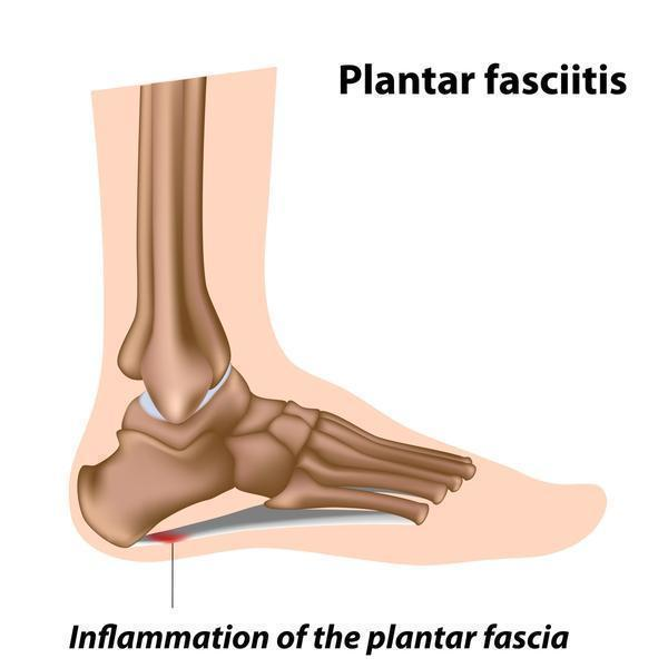 Will plantar fasciitis heal on its own without surgery?