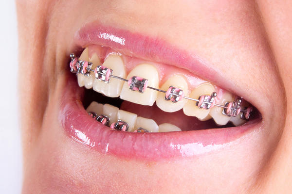 If money is no problem, is there a teeth straightening surgery?