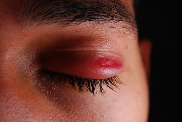 how to fix broken blood vessels bruising