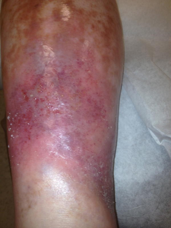 treatment for phlebitis from iv k--k club 2019