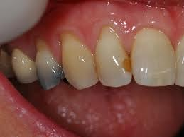My dentist said the white plastic filling i had on my front tooth years ago is attracting stains and laser. Why is that?