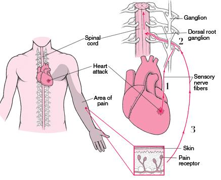 Describe how finger tingling and shoulder pain acts due to a impending heart attack.