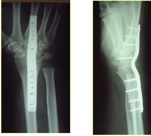 How long does it usually take a radial fracture to heal?