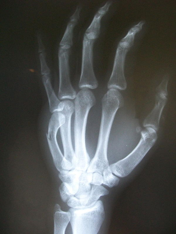 I have a boxer's fracture in my right hand. What are my treatment options?
