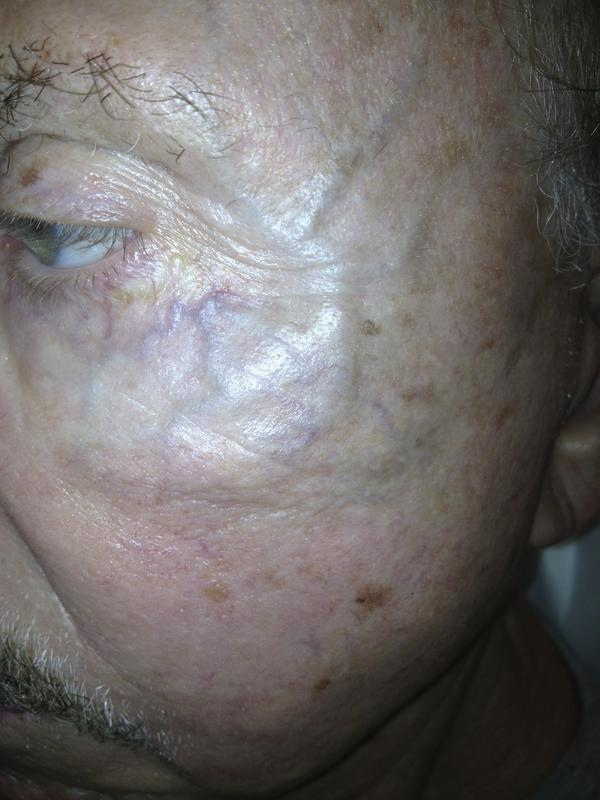 Is there an easy way to get rid of a prominent vein on your forehead?