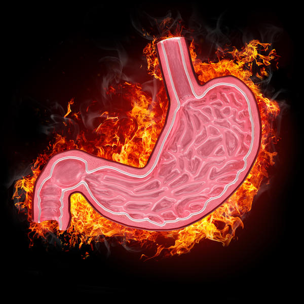 Could a burning sensation in the stomach also be caused by anxiety and stress?