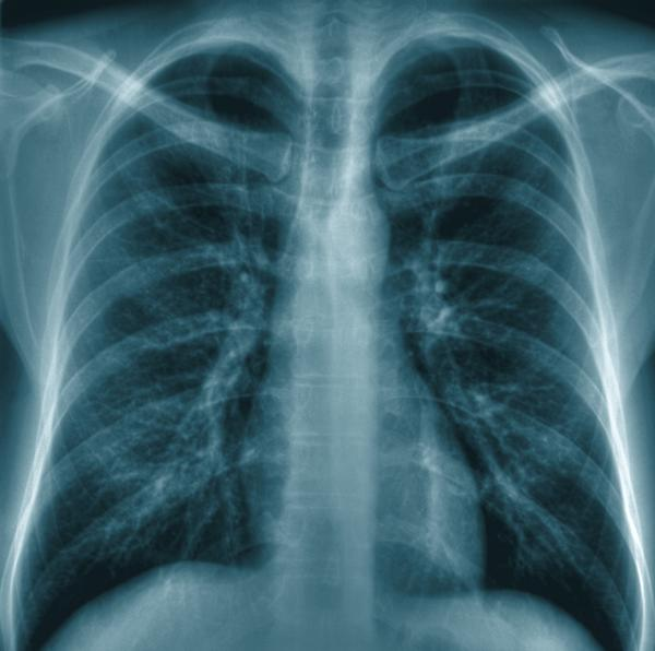 What could cause fluid in chest cavity?