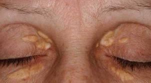 Causes of yellow skin around eyes, like a black eye but color yellow. Eyes white, no yellow skin anywhere else.