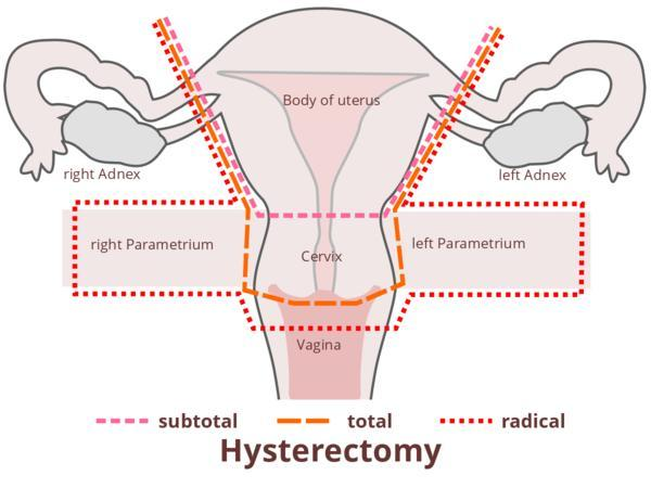 Please tell me, could a tummy tuck be done with hysterectomy?