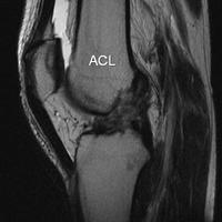 How long does ACL reconstruction and meniscus repair take?