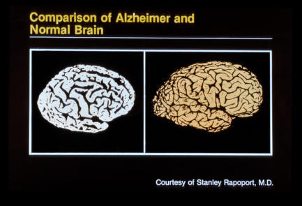 What is the symptoms for alzheimer?