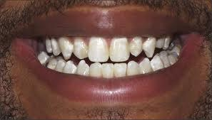 Need some dental expertise! my teeth are in good condition i just naturally have calcium deposits on my front teeth. Will whitening them remove/ blend them in ?