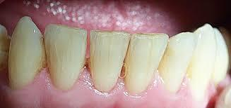 Docs can you explain, is there anyway a dentist can fix hairline cracks on the surface of a tooth?