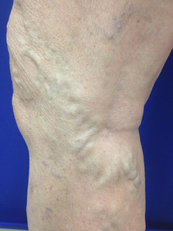 Can you tell me if I get evlt, and later get pregnant, will my vericose vein symptoms come back?