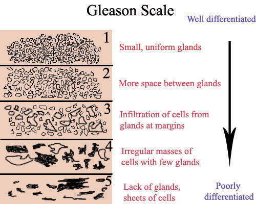 Can you tell me how bad is a gleason score of 9 for prostate cancer?