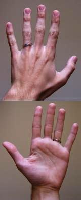 I believe I have mallet finger. What do I do help?