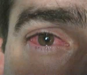 What to do if I have had conjunctivitis for over a year can anyone help me get rid of it once and for all?