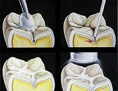Are etching gels used for dental sealants?