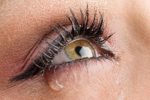 What causes watery eyes after use of tobradex (tobramycin and dexamethasone) n ofloxin for 7 days?
