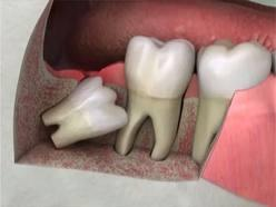 For what reason can't a dentist simply remove the second molar just before the wisdom tooth instead of removing the wisdom tooth that is impacted?