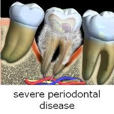 How to treat bone loss caused by periodontitis?