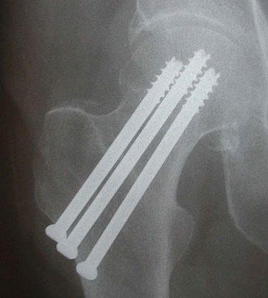 Which treatments are best for a woman over age 80 with femoral neck fractures?
