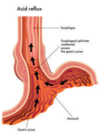What is  done for significant reflux to the clavicular head level. After an  endoscopy is done by the gastroenterologlist .  How then will they treat ?