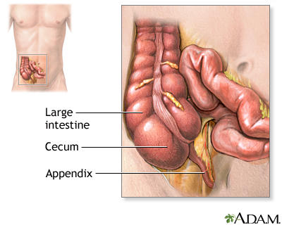 How do I know if appendicitis?