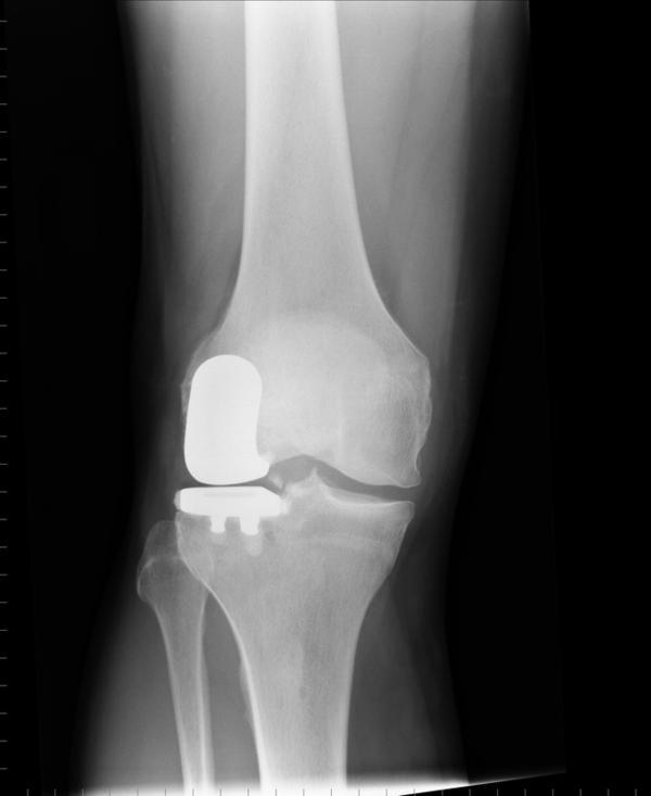 What is the definition or description of: osteoarthritis?