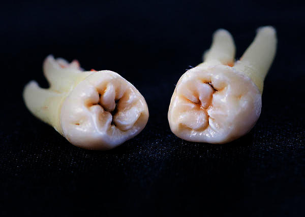 Dental experts! What will the recovery after getting one wisdom tooth pulled be like?