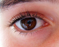 How come some people`s whites of their eyes have a blue tinge to them?